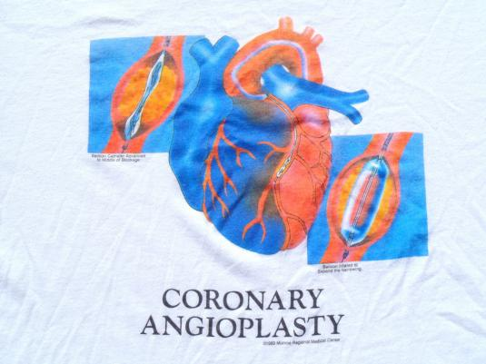 Vintage 1989 Coronary Angioplasty White T-Shirt L